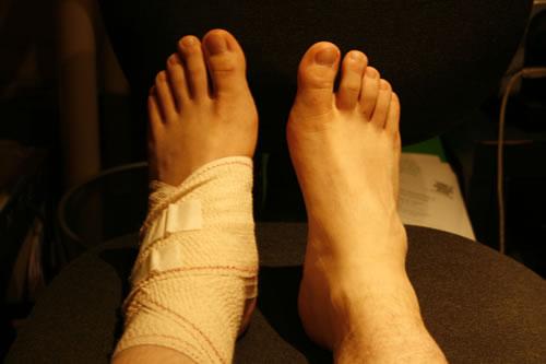 ねんざの知識を高めて治療をちゃんとしよう