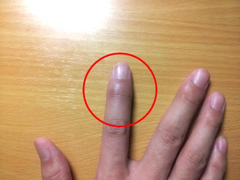 突き指の治療とテーピングの方法を解説